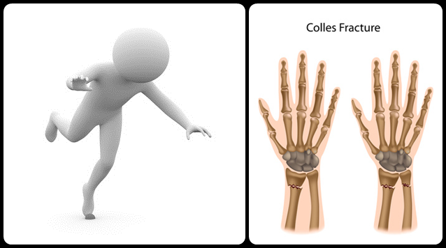 Colles_Fracture11365608993