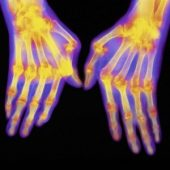 arthritis pain, massage therapy treatment, Sarasota